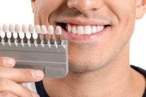 wybielenie zębów
