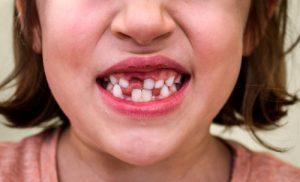 zęby zepsute