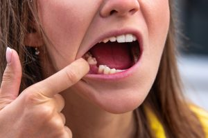 brudne zęby