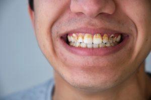 zęby wypadające